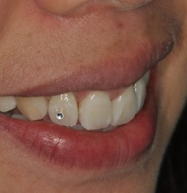 Dental Jewels SKYCE | Klinika Mediestetik